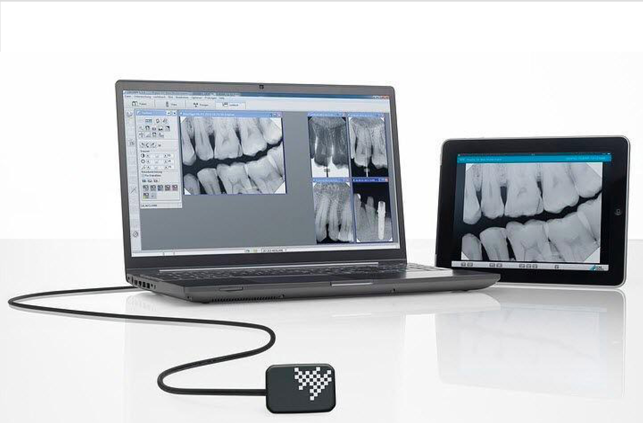 RVG and Digital X-Ray System
